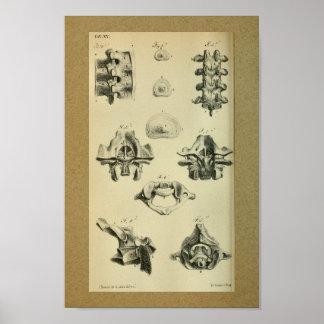 1850 de RuggegraatsRuggewervels van de vintage Poster