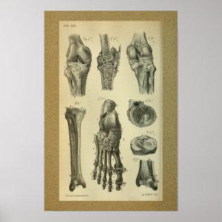 1850 de vintage Knie van de Voet van de Druk van Poster