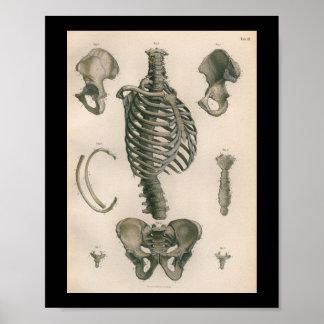 1879 het vintage Skelet van de Druk van de Poster