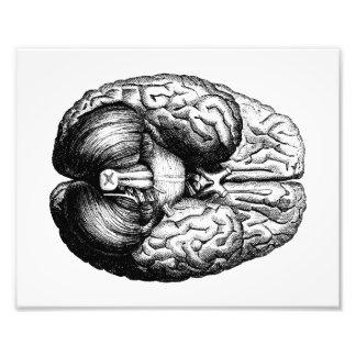 Anatomische Hersenen Foto Afdrukken