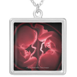 Conceptueel afbeelding van een uterus die zilver vergulden ketting