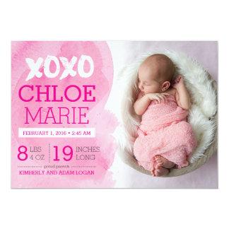 De Aankondiging van de Geboorte XOXO