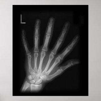 De extra Linkerhand van de Röntgenstraal van het Poster