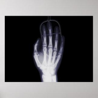 De Hand van de röntgenstraal Poster