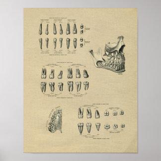 De menselijke Tand Vintage Druk van de Anatomie Poster