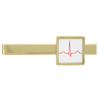 ECG of elektrocardiogram van het patroon van het Vergulde Dasspeld