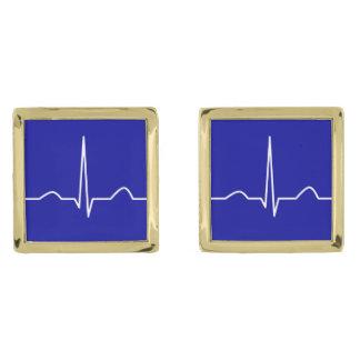 ECG of elektrocardiogram van het patroon van het Vergulde Manchetknopen