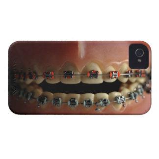 Een tandmodel en de steunen van Tanden iPhone 4 Hoesje