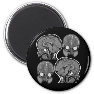 HERSENEN! (MRI) RONDE MAGNEET 5,7 CM