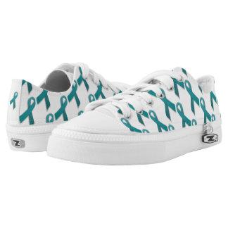 Het blauwgroen kant van het Lint op schoenen