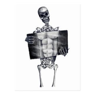 Het Witte Briefkaart van de Röntgenstraal van de
