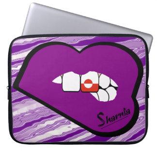 Laptop van Groenland van de Lippen van Sharnia de Laptop Sleeve