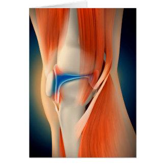 Medische Illustratie: Ontsteking in Knie Kaart