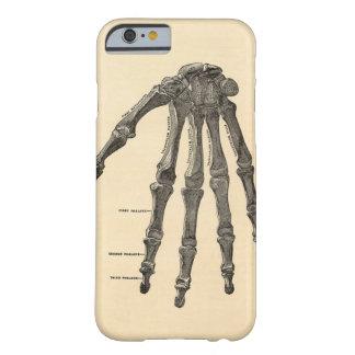 Medische iPhone 6 van het Bot van de Hand van de A Barely There iPhone 6 Hoesje