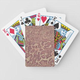 Schildkliercellen met kanker poker kaarten