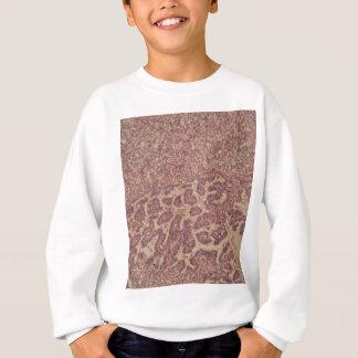 Schildkliercellen met kanker trui