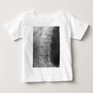 scottie hondsyndroom baby t shirts